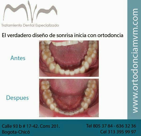 Alineacion dental con brackets linguales=ortodoncia invisible