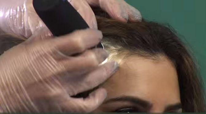 Il consulenteTricoRewire per una Consulenza Tricologica gratuita un professionista selezionato e preparato, in grado di analizzare il cuoio capelluto,