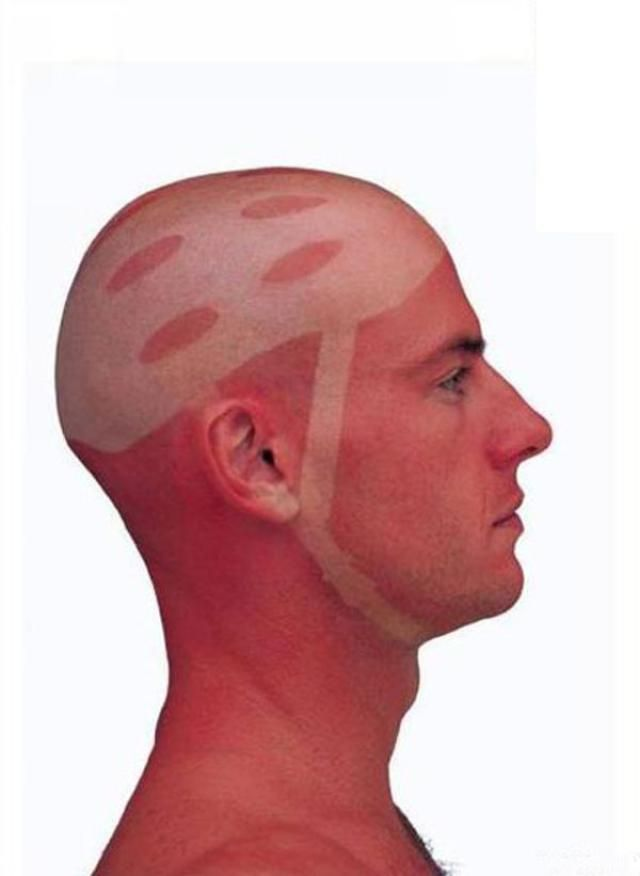 Ouch! 19 of the Worst Sunburns and Tan Lines EVER | Humor ...