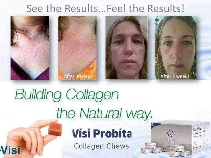 Probita Collagen Chew www.tonyastrovers.govisi.com