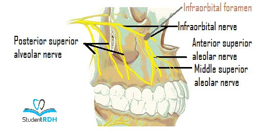 Maxillary nerves, local anesthesia dental hygiene boards, WREB, CDCA local anesthesia, sample questions