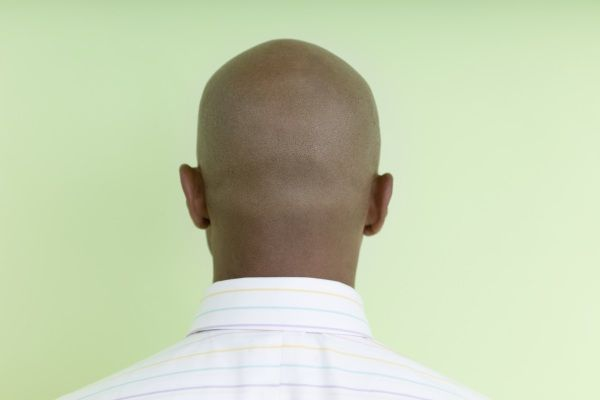 the effects of male pattern baldness Biofen & hair regrowth treatment and prevention   the most common condition associated to hair loss is androgenic alopecia, better known as male-pattern baldness.