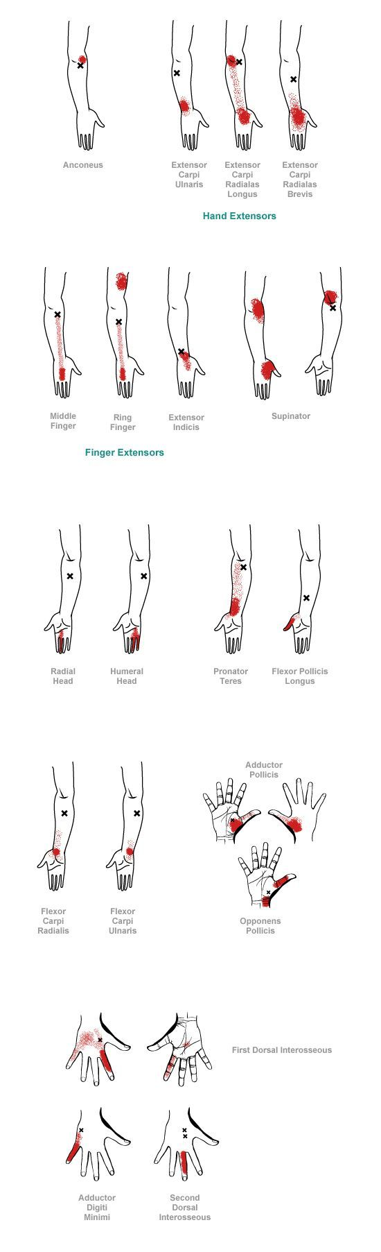 17 Best Images About Hand Therapy On Pinterest Human