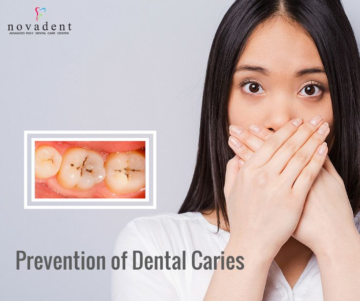The prevention of Dental Caries can be approached in three ways.  1. Use ‪#‎fluorides‬. 2. Reduce frequent consumption of sugars. 3. Apply pit and fissure sealants. ‪#‎dentalcaries‬ ‪#‎dentalcare‬ http://www.novadenttly.com/