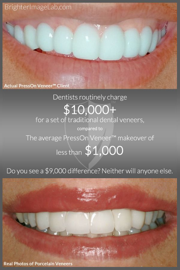Pin by Bil Watson on Brighter Image Lab/Press-On Veneers ...