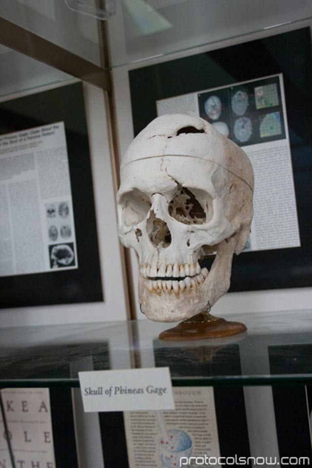 Phineas Gage - His Amazing Story