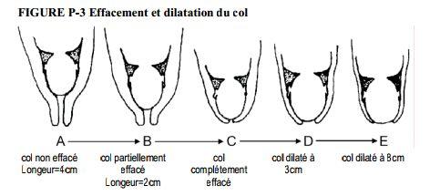 Mettre Au Monde Au Naturel : Effacement et Dilatation du col :phase du travail, palper abdominal et toucher vaginal