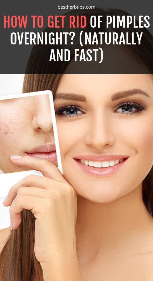 How To Get Rid Of Pimples Overnight Naturally And Fast