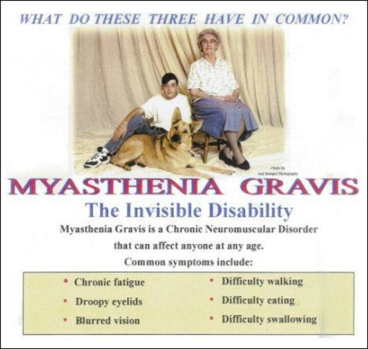 How To Treat Myasthenia Gravis Naturally