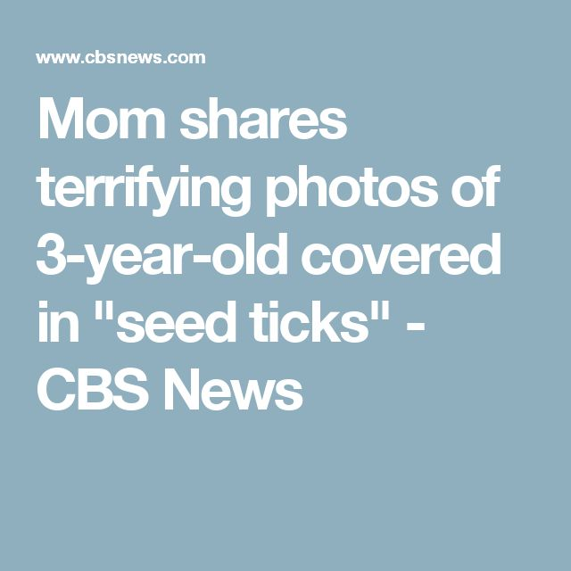 """Mom shares terrifying photos of 3-year-old covered in """"seed ticks"""" - CBS News"""