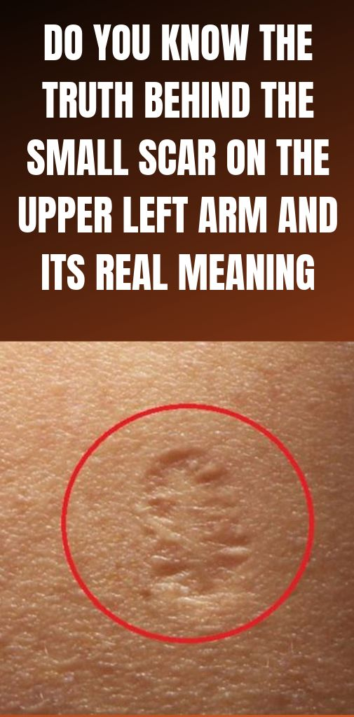 Do You Know The Truth Behind The Small Scar On The…