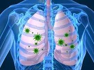 Respiratory syncytial virus is a common contagious virus that can affect the respiratory tract of babies. It can also results in bronchiolitis....... http://www.natural-health-news.com/respiratory-syncytial-virus-symptoms-causes-diagnosis-and-treatment/