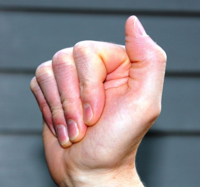 Tendon Gliding Exercises for Carpal Tunnel Syndrome