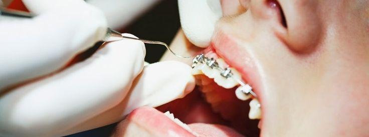 Kieferorthopädie: Kritik an Zahnspange unerwünscht
