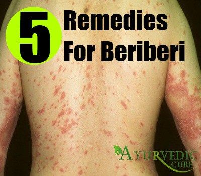 Perfect Home Remedies For Beriberi - Natural Treatments & Cures | Herbal Supplements