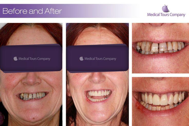 Cazuri before & after #coroane dentare #implanturi dentare