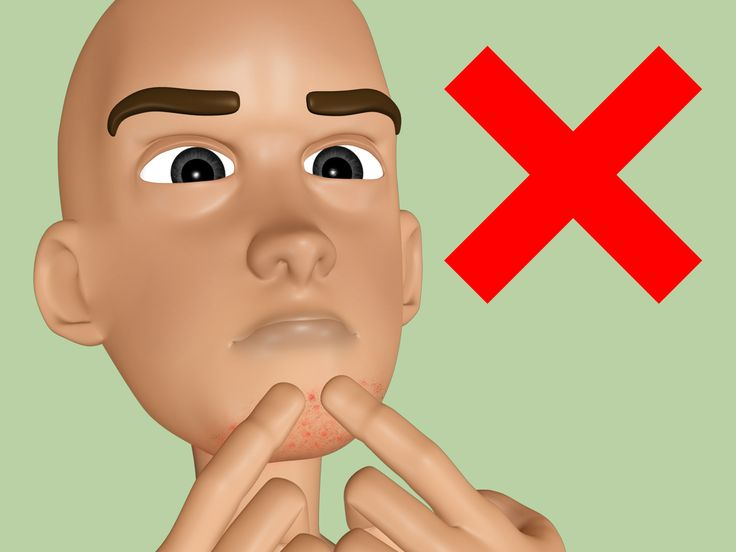 how to avoid razor bumps when shaving