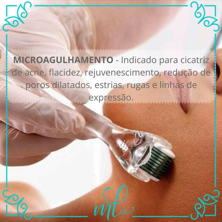 MicroAgulhamento - Dra Maria Luiza V. Perez