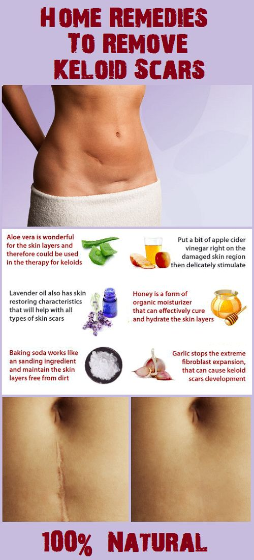 Home Remedies To Remove Keloid Scars