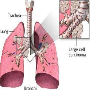 Different Stages Of Lung Cancer