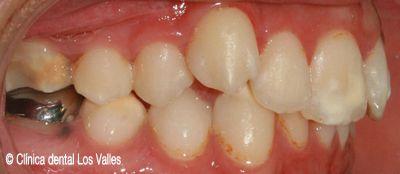 Imagen antes del tratamiento con ortodoncia Damon  Ⓒ Clínica dental Los Valles