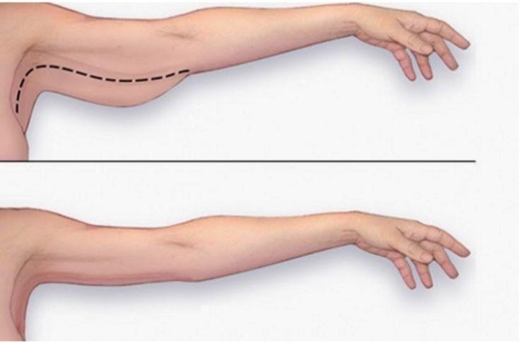 Les filles et les gars ont les mêmes problèmes avec leurs bras. Les filles veulent des bras toniques et minces, alors que les gars veulent des muscles énormes. Êtes-vous préoccupé de tonifier vos muscles ? Regardez cette vidéo pour savoir comment perdre la graisse de bras à la maison.