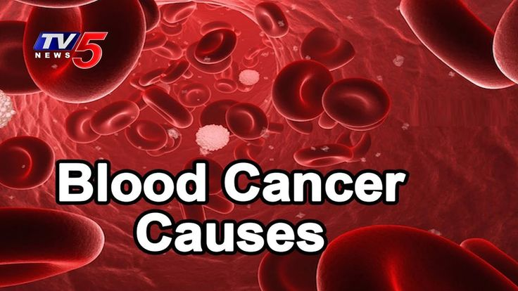 Causes And Symptoms OF Blood Cancer | Yashoda Hospitals | Health File | TV5 News - WATCH VIDEO HERE -> http://bestcancer.solutions/causes-and-symptoms-of-blood-cancer-yashoda-hospitals-health-file-tv5-news    *** what are the causes of cancer of the blood ***   For More Updates ► TV5 News Live ► Subscribe to TV5 News Channel: ►  Download TV5 Android App: ►Our Website : ► Like us on Facebook: ► Follow us on Twitter: ► Circle us on TV5 News Channel G+: ► Follow