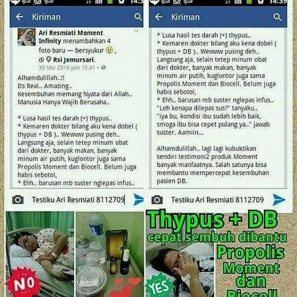 Yuuk tetes PROPOLIS Brazilian dan semprot BIOCELL MOMENT utk terapi typus dan DBD... Info order  Ulfa  Bbm 5bd0c752 Wa/sms 081266093636 Ig @ulfamonentinfinity