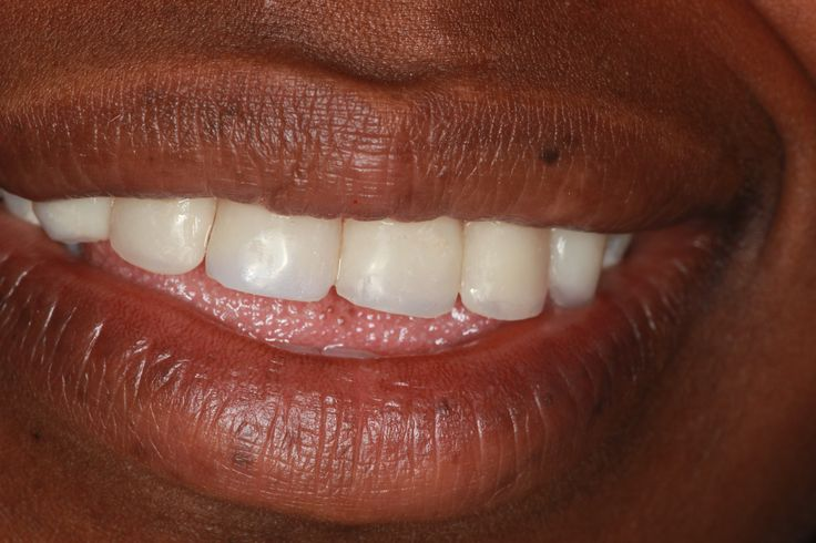 Patient2 - After veneers attched