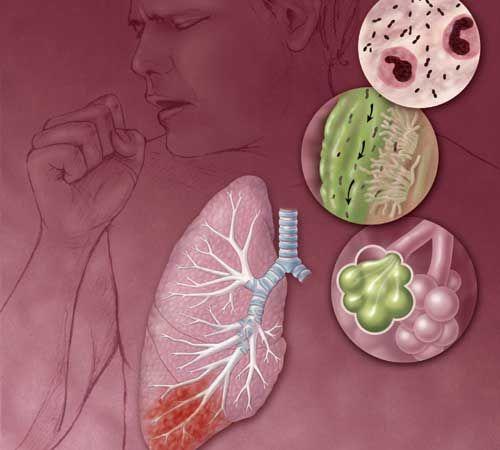 Symptoms of Haemophilus influenzae