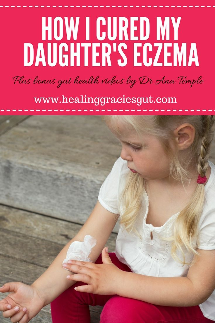 How I cured my daughters eczema without steroid creams.  Tips on gut health healing + gut health videos from Dr Temple of Familywellness Tips.