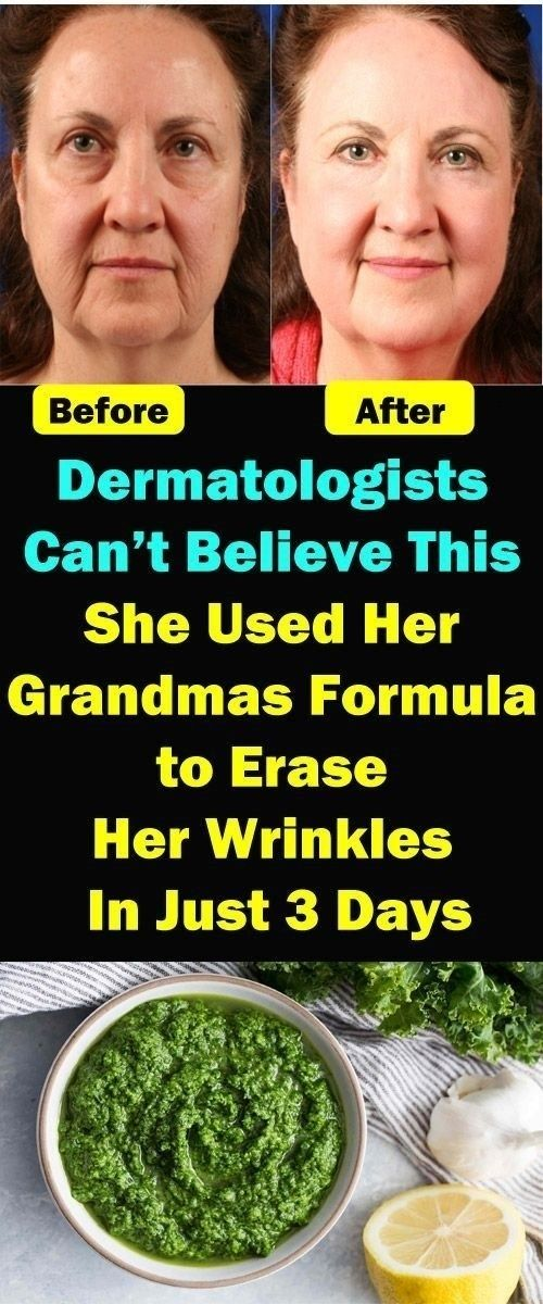 DERMATOLOGISTS CAN T BELIEVE THIS SHE USED HER GRANDMAS
