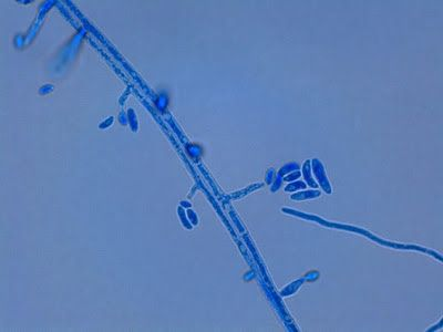 Fusarium oxysporum - yet another view of two parallel hyphae from which the phialides extend producing micro (&/or macro) conidia.  Conidia vary in shape from the rather straight fusiform (lens shaped) to the curved banana or canoe shape.  (X100 LPCB: DMD-108)