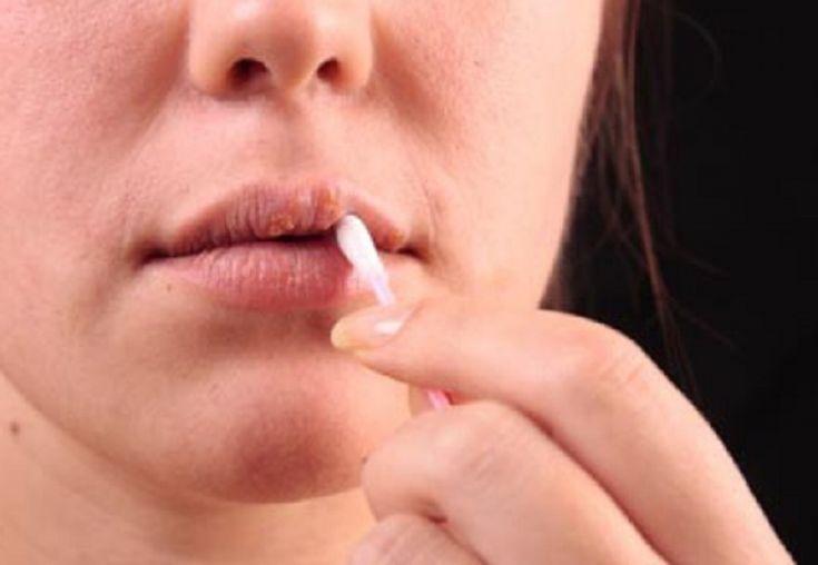Herpesul este o adevărată problemă şi apare atunci când nu îţi doreşti. Nu este cazul să te panichezi, să fugi la farmacie imediat sau să foloseşti