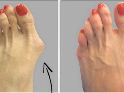 Siamo tutti consapevoli del fatto che, nel corpo, le nostre ossa sono collegate l'una all'altra, e pertanto, il dolore in una zona può anche portare a problemi in altre. Ad esempio, il dolore che ha origine nel piede, causa effettivamente dolore alla gamba. Ci sono numerose ragioni, oltre 25, per il dolore provato ai piedi, come infiammazioni dell'alluce, calli, spina calcaneare, artrite, piede d'atleta, dita sovrapposte e unghie incarnite, e tutte loro provocano qualche forma di sofferenza…