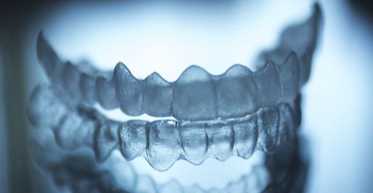 Un estudiante crea su propio aparato dental mediante impresión 3D -  VER MAS http://www.hwlibre.com/un-estudiante-crea-su-propio-aparato-dental-mediante-impresion-3d/