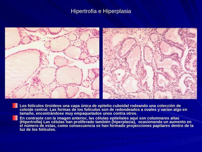 Anatomía Patológica Clase 1 Adaptación celular. Daño celular reversible e irreversible. - Documents
