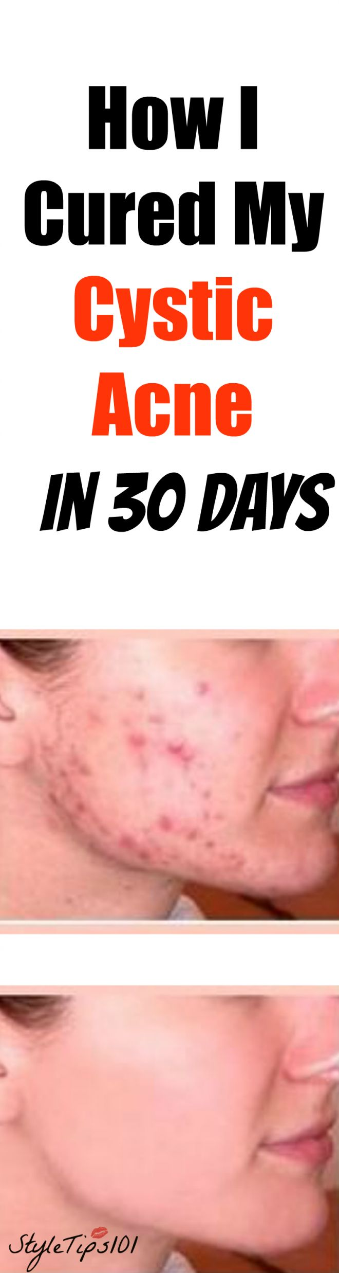 antibiotics to treat cystic acne
