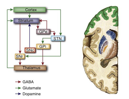 basal ganglia disorders essay The disappearing basal ganglia sign is representative of cerebral infarction (, 1-, 3) the sign is usually caused by incomplete to complete occlusion of the mca as a result of thromboembolic disease.