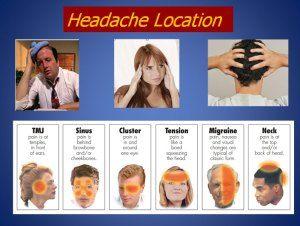 Headache Locations:::doTerra essential oils that might help...
