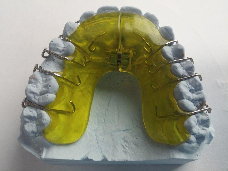 Una buena colocación de los dientes es salud y no solo belleza!!! #Ortodoncia http://farmanueva.com/blog/que-problemas-soluciona-la-ortodoncia/