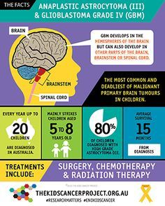 Anaplastic Astrocytoma & Glioblastoma Grade IV Infographic Childhood Cancer