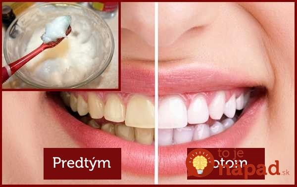 5 jednoduchých spôsobov, ako odstrániť zubný povlak a získať žiarivý úsmev