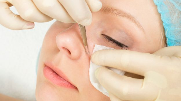How to Get Flawless Skin: Natural Ways to Treat Blackheads and Open Pores - NDTV Food