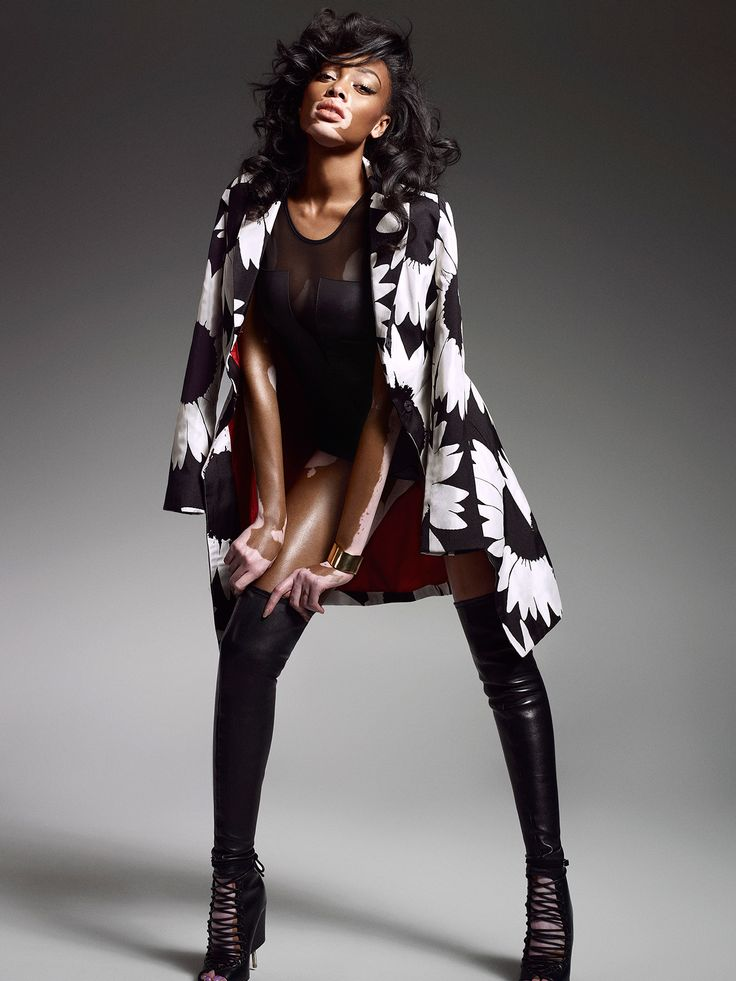 I am not a Vitiligo model: Winnie Harlow - Rediff.com