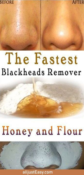 How to get rid of Blackheads naturally – AlljustEasy