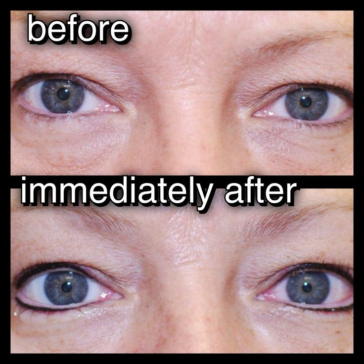 11 best permanent makeup my client 39 s before after for Tattoo eyeliner bottom lid