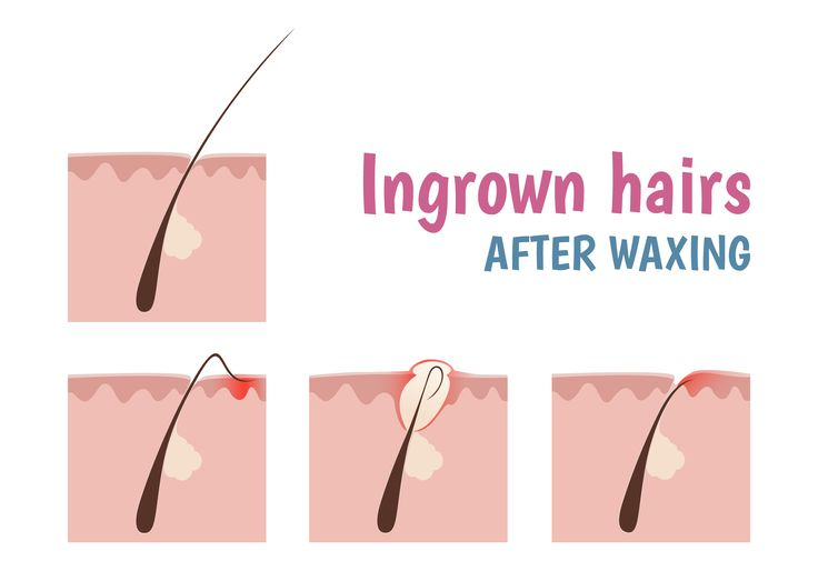 Say goodbye to post waxing problems & hello to Ingrozero Ingrown Hair Solution.It removes & resolves all the troublesome problems! https://www.hairhousewarehouse.co.za/hair/hair-removal/ingrozero-ingrown-hair-solution