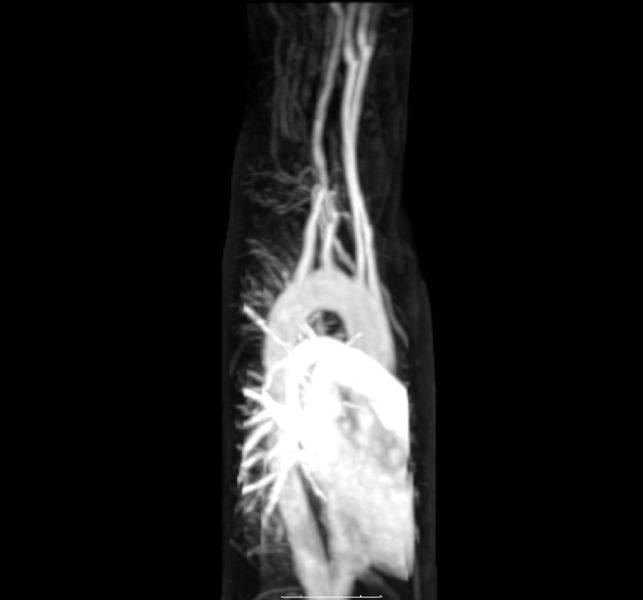 Aberrant subclavian artery in MRI / MRA. Maximum intension projection.