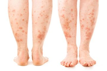 Solar urticaria is a rare skin condition caused by an allergic reaction to the sun. See more pictures of skin problems.